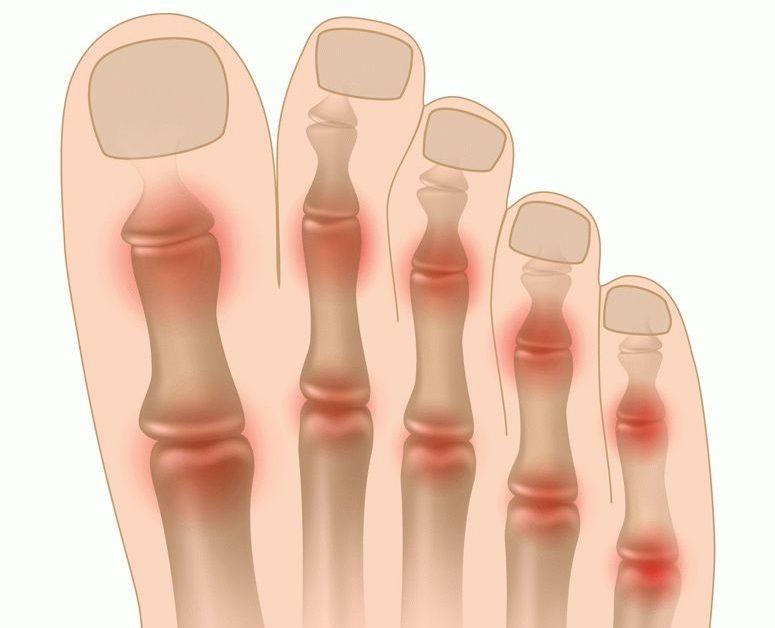 Terav valu pluss ruumis falange liigese