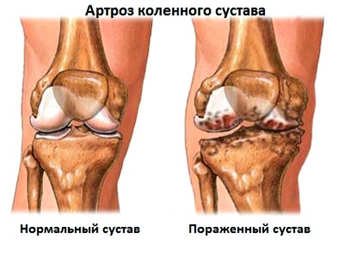 Vaikeste liigendite artroosi vasak jalgsi Mida teha, kui artriit kaed
