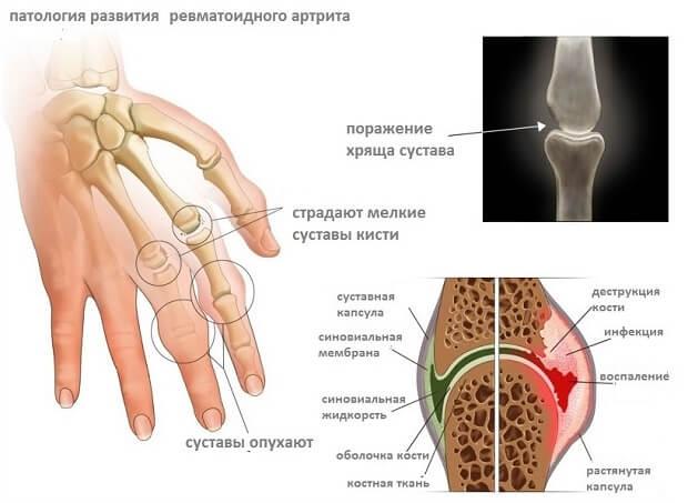 Hurt sormede ja kate liigestele Vaikeste liigendite artroosi salv