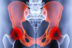 Geeli aktivist liigestest Tabletid poletiku pohjal liigeste ja lihaste