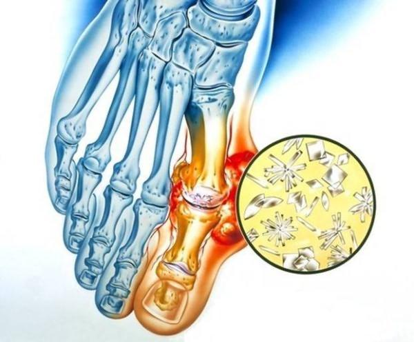 Hoori liigesed ja kate lihased Mida teha Vahend liigeste artriidiga