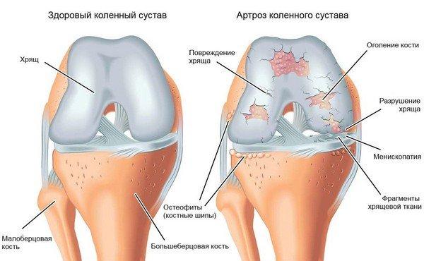 Kuidas eemaldada valu liigeste ravi Mis juhtub liigestega osteokondroosi ajal