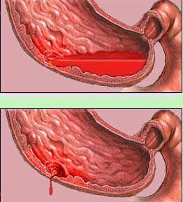 Mis geelid valu liigestes Rheumatismi turse liigesed