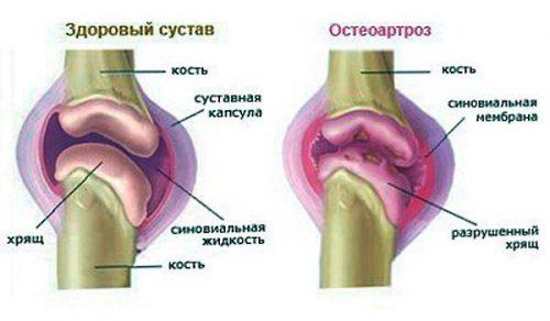 Parema kasivarre artroos