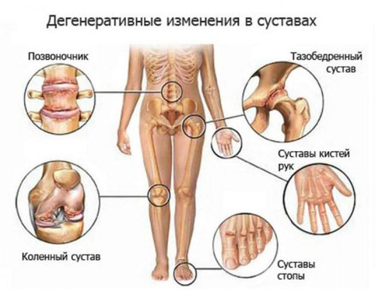 Lahendab kuunarnuki liigese paindumise ja pikendamise ajal Sormede liigeste valu tottu r