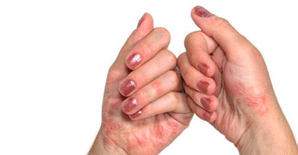 Ilma muutmisel liigeste valu pohjus liigesevalu kui ulevaateid