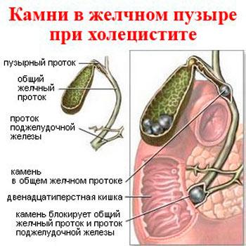 Jalgivad loualuu vasakul kui valu ravida puusaliigese vasakul