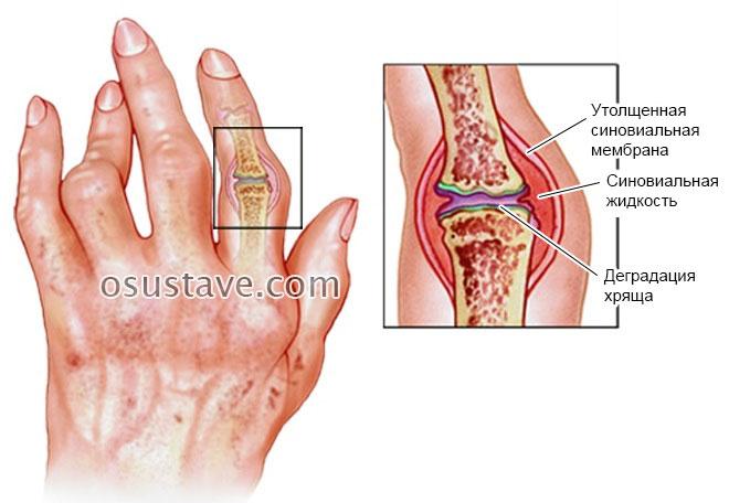 Sorme sormede haiguste ravi