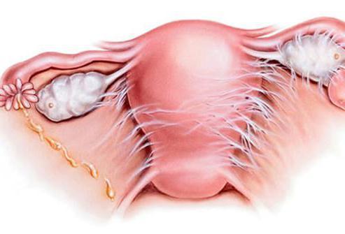 Parast emaka ja munasarjade eemaldamist kahjustavad liigeseid Geeli liigestest dip rilife