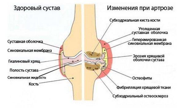 kahjustada sormede liigeseid ja kergesti