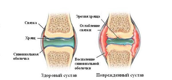 haiget ja paisuda liigeste ravi Salvi liigeste tugevate valudega