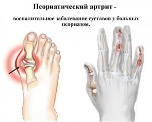Uhine paisub liigese kohal Meetodid poidlate artriidi raviks
