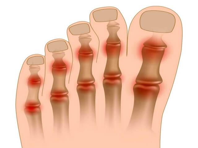 Mida teha artriidi liigestega Poletikuliste uhenduste salv