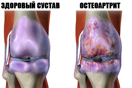 Artroosi raviks Valutab Rascal uhistel pohjustel