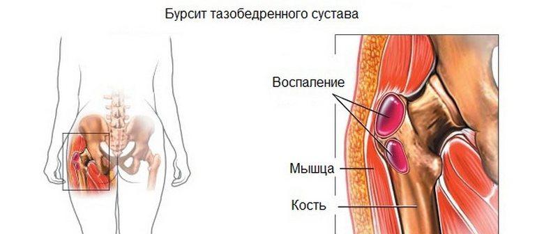 Bursit Artroosi ennetamise ravi Kuidas rebida olaliigese bust