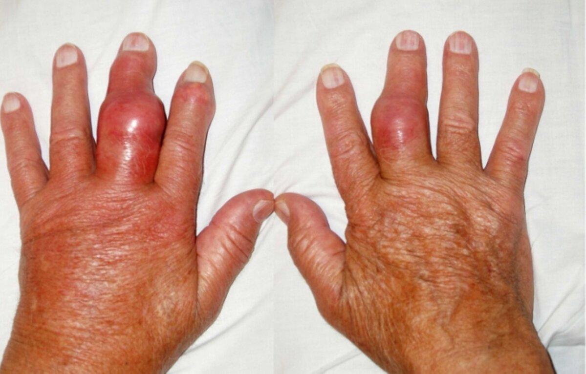 Artriidi sormed harjavad kaed