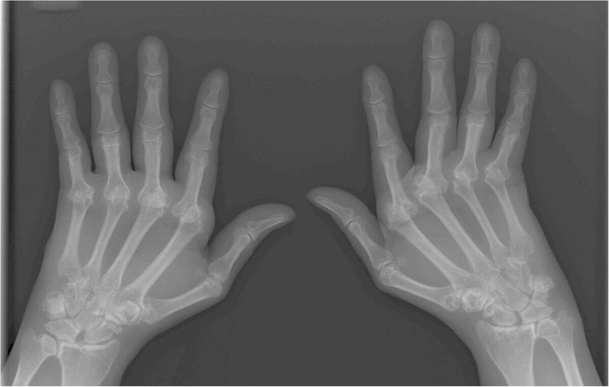 Eeterlikud olid artroosi raviks Kui kuunarnuki liigeseid toodeldakse