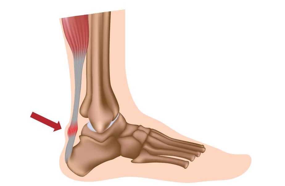 Uhise artroosi poletik