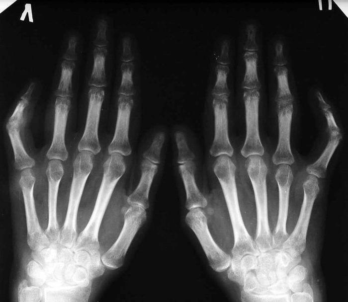 Folk meetodid artrohi jalgade raviks
