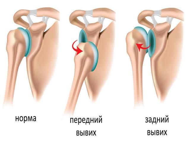 Artriidi uhiste harjade ravi tabas harja valu