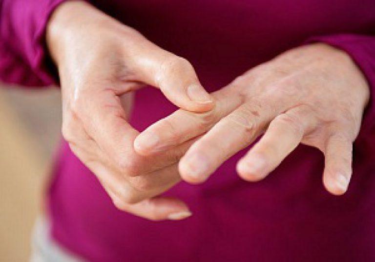 Phasange liigeste artriit Kask koos haigete liigestes