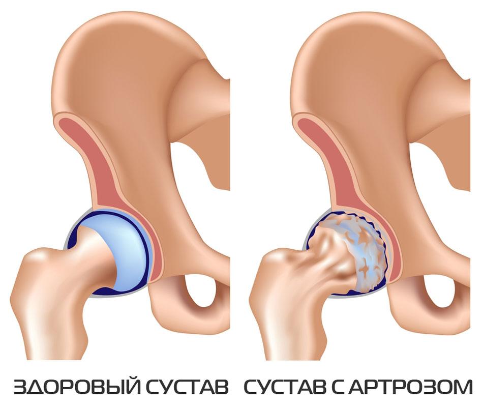 Kodune ravi artroosi