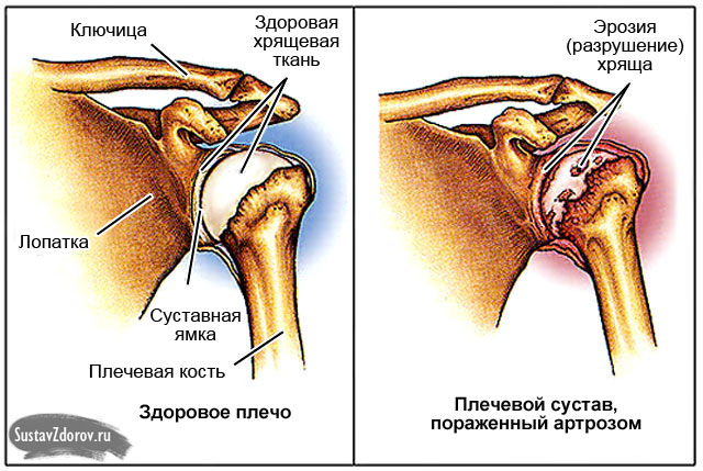 Tugev valu parema kae ola liigeses Parim salv liigestest