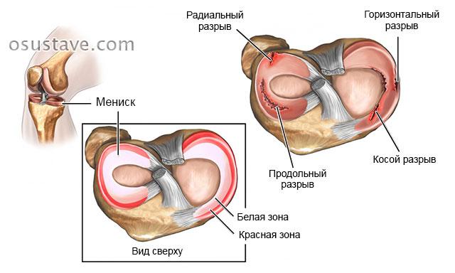 Valus sormeotste liigeste valu