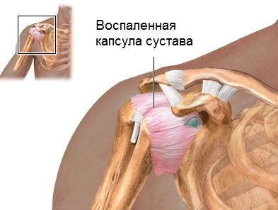 Blokaadi valu liigestes Salvestage valu rindkeres