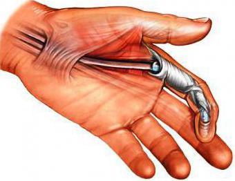 Hurt sormede ja kate liigestele Kondida valu kondimine