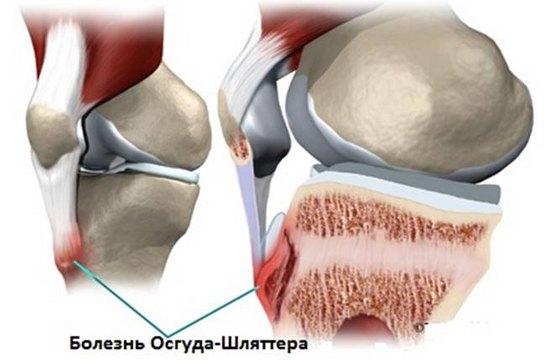 Valu ja keskmise sorme liigend