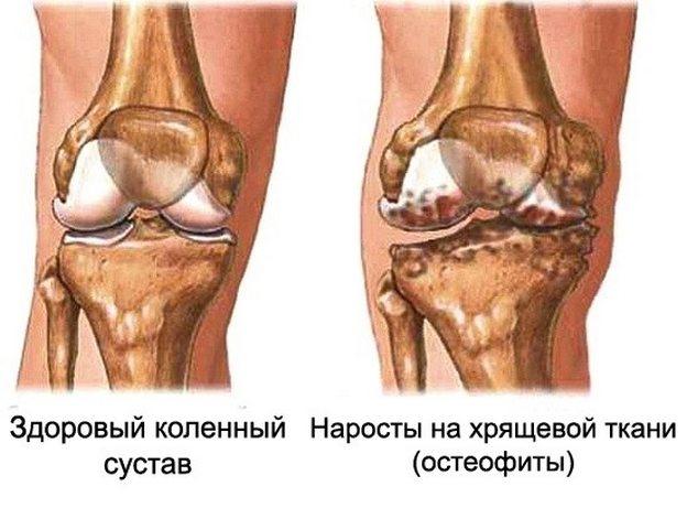 Kuidas ravida artroosi tuvirakke