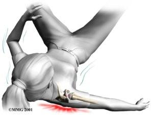 Klopsude olaliigese parast vigastusi