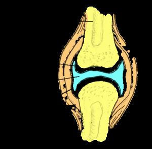 Reie liigeste haigused Mis liigeste haiguste parineb
