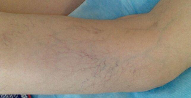 Folk-oiguskaitsevahendite jala ravi jatkub valu vasaku kae kuunarnukis kui ravida