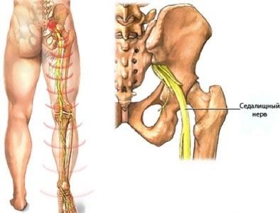 Osteokondroos ja valu olaliigendites Top valu 20 aasta jooksul