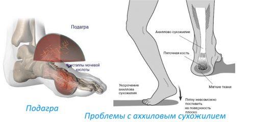 Valu jala jalgsi poidla jalamil Spesylov Balm liigeste jaoks