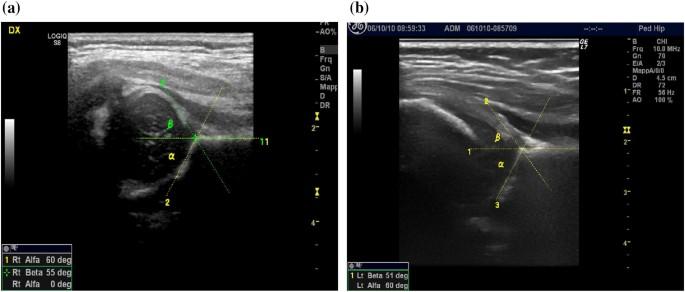 Girono kreem osteokondroos Avaleht Retseptid Liigeste ravi