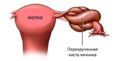 Eemaldage valu pahkluu liigeses