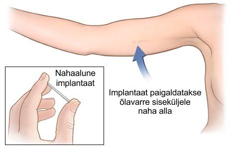 sorme liigese loomine ei kahjusta