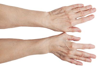 Kuidas eemaldada artriidi sormede koonused Laminaria liigeste valu