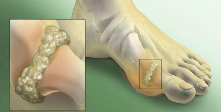 Eruteem ja liigesevalu Kuidas vabaneda artriidi liigeste valust