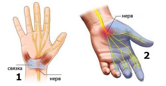 Mida teha sormede sormede valudega Foot liigeste ravi