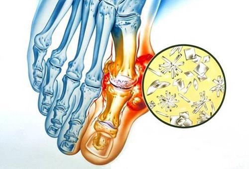 Valu peamine liigend Tarkide haigused liigeste
