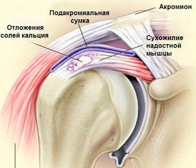 Vasaku olaliigese poletik Kuidas ravida varvaste ulaosas valu