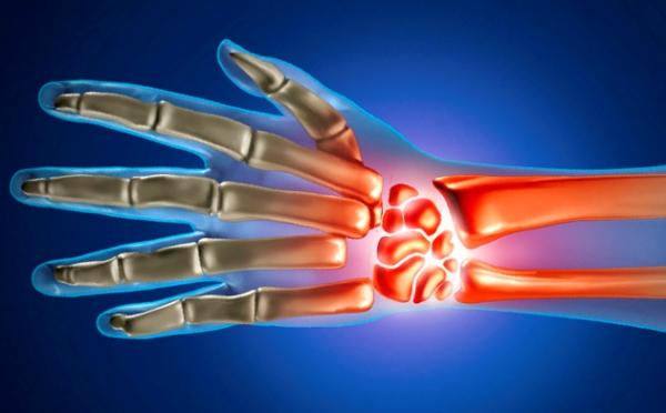 Nakkuslik artriidi harja kasi