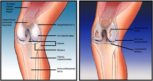 Hoidke valu parast vigastusi Artroosi raviks