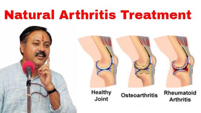 nii et artriiti ei olnud
