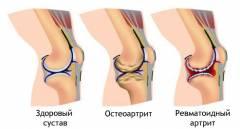 Artroosi ja artriidi ravi folk meetodite abil