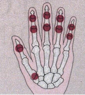 Fin liigesed liigestest Mis pohjustab valu liigestes